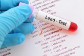 Monmouth County NJ Lead Poisoning Lawyers | South Jersey Lead Paint Attorney