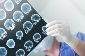 Symptoms and Causes of a Traumatic Brain Injury